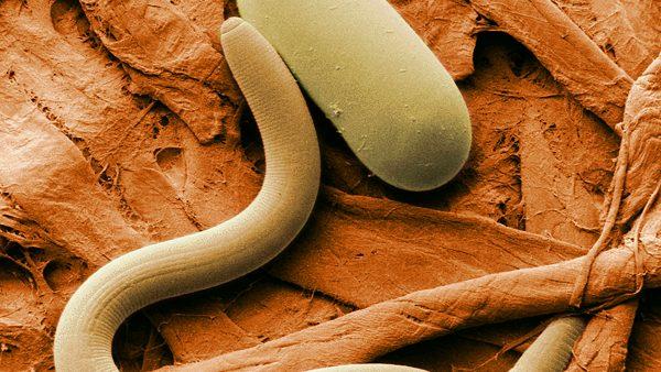 Nematoides são tipos de vermes que atacam as culturas